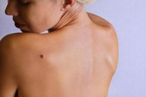 208796-675x450-woman-looking-at-birthmark-on-back